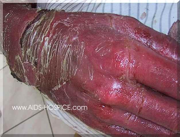 صور مرعبة لضحايا الايدز واللواط  تنبيه الصور مرعبة مرعبة مرعبة Ph%20pxx%20008