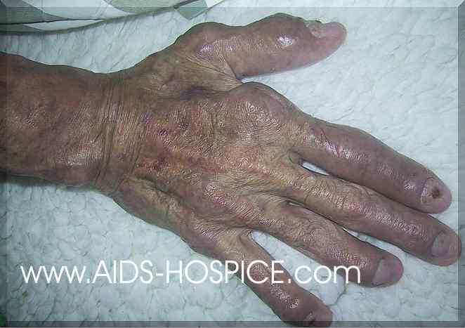 صور مرعبة لضحايا الايدز واللواط  تنبيه الصور مرعبة مرعبة مرعبة Ph%20pxx%20355